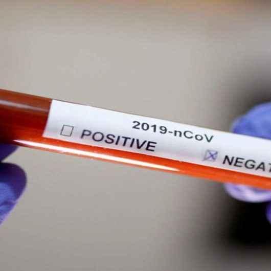 Caraguatatuba tem 44 pacientes recuperados da Covid-19