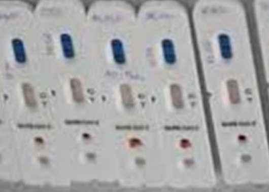 Prefeitura fiscaliza e realiza testagem em Instituições de Longa Permanência de Idosos