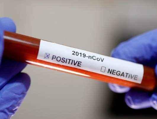 Caraguatatuba confirma dois novos casos para Covid-19