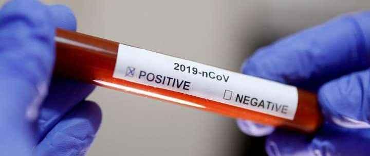 Covid-19: Caraguatatuba registra mais de 4 mil pacientes recuperados
